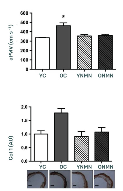 NMN supplmentation significantly improved arterial health on mice