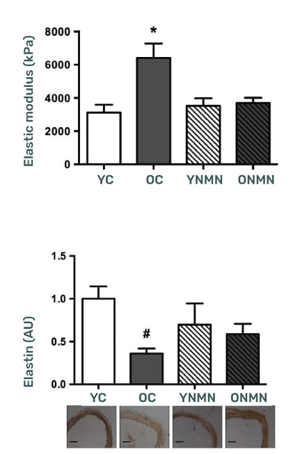 NMN Supplementation reduced arterial stiffness compared to untreated old mice